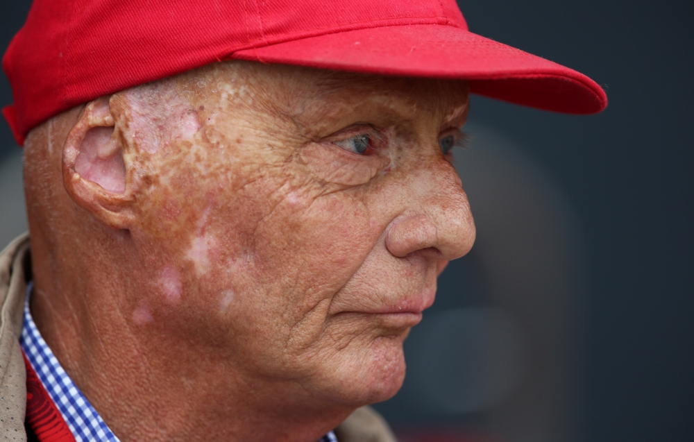 niki lauda ontmoet 40 jaar na horrorcrash de man die zijn. Black Bedroom Furniture Sets. Home Design Ideas